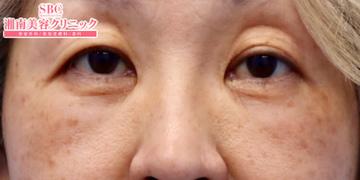 湘南美容クリニック奈良院の目元の整形、くま治療の症例写真[アフター]