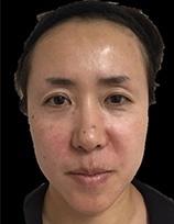 とみ皮膚科クリニックの顔のしわ・たるみの整形(リフトアップ手術)の症例写真[アフター]