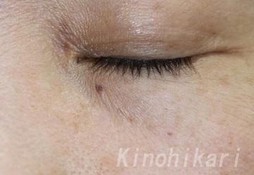 樹のひかり 形成外科・皮ふ科のほくろ除去・あざ治療・イボ治療の症例写真[ビフォー]