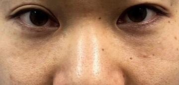 湘南美容クリニック 川崎院の目元の整形、くま治療の症例写真[ビフォー]