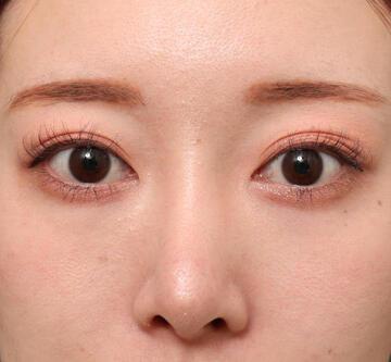 オザキクリニックの目・二重整形の症例写真[ビフォー]