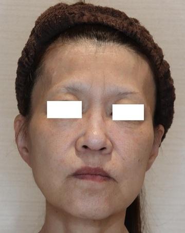 ザ ナチュラルビューティークリニック 四ツ橋院の顔のしわ・たるみの整形(リフトアップ手術)の症例写真[ビフォー]