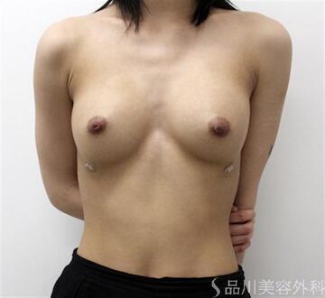 品川美容外科の豊胸手術(胸の整形)の症例写真[アフター]