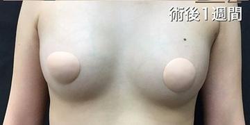 東京ゼロクリニック銀座の豊胸・胸の整形の症例写真[アフター]