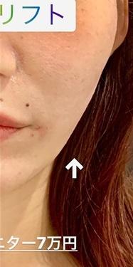 ルラ美容クリニック 高田馬場院の顔のしわ・たるみの整形(リフトアップ手術)の症例写真[アフター]