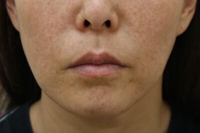 咬筋BOTOX・顎シリコンプロテーゼ・頬吸引の症例写真[アフター]