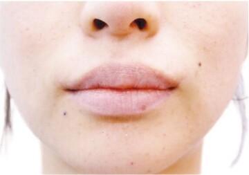 の口元・唇の整形の症例写真[ビフォー]