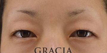 GRACIA clinic(グラシアクリニック)の目・二重整形の症例写真[ビフォー]