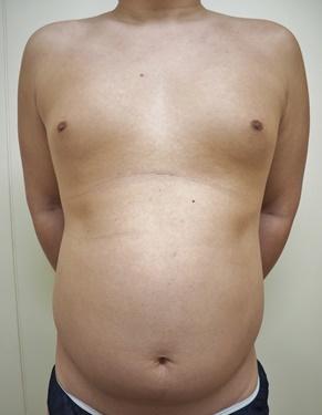 胸部・腹部の脂肪吸引[ビフォー]