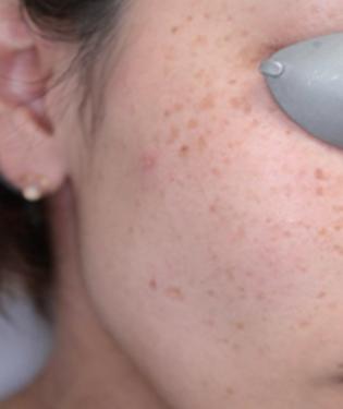 さくらこまち皮フ科クリニックのシミ治療(シミ取り)・肝斑・毛穴治療の症例写真[ビフォー]
