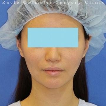 新宿ラクル美容外科クリニックの顔の整形(輪郭・顎の整形)の症例写真[アフター]