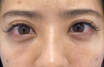 湘南美容クリニック 川崎院の目元の整形、くま治療の症例写真[アフター]