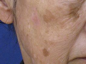ハートライフクリニックのシミ治療(シミ取り)・肝斑・毛穴治療の症例写真[ビフォー]