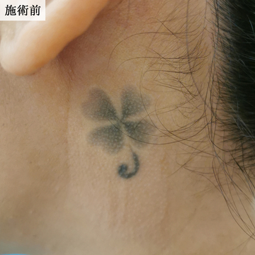 エースクリニックのタトゥー除去の症例写真[ビフォー]
