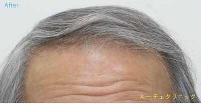 ARTAS(アルタス)9x自毛植毛術の症例写真[アフター]