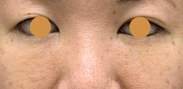ウェンデルクリニックの目元の整形、くま治療の症例写真[アフター]