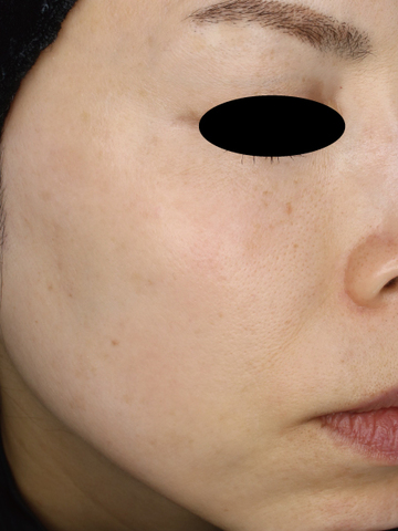 すなおクリニックのシミ治療(シミ取り)・肝斑・毛穴治療の症例写真[アフター]
