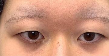 湘南美容クリニック 新潟院の目・二重の整形の症例写真[ビフォー]