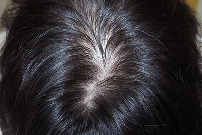 頭髪治療(薄毛、抜け毛治療)女性の症例写真[アフター]