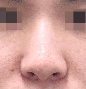 湘南美容クリニック上野院の鼻の整形の症例写真[ビフォー]