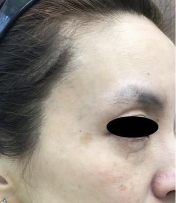天神かよこクリニックのシミ治療(シミ取り)・肝斑・毛穴治療の症例写真[ビフォー]