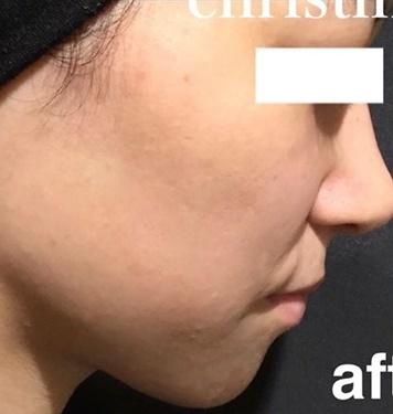 CHRISTINA clinic GINZA (クリスティーナクリニック銀座)のニキビ治療・ニキビ跡の治療の症例写真[アフター]