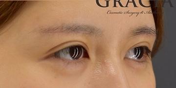 GRACIA clinic(グラシアクリニック)の目元の整形、くま治療の症例写真[アフター]