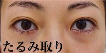 SELECT CLINIC(セレクトクリニック)の目元整形・クマ治療の症例写真[アフター]