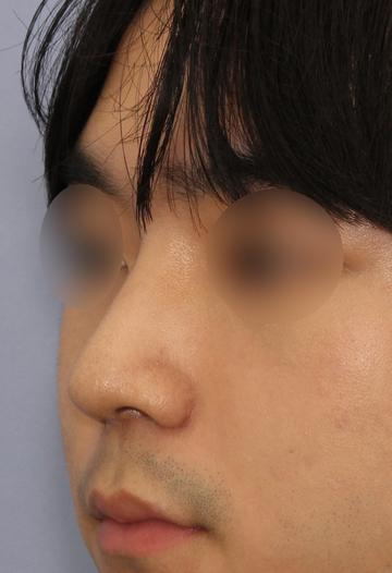 湘南美容クリニック 大阪梅田院の鼻の整形の症例写真[アフター]