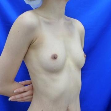 湘南美容クリニック 大阪梅田院の豊胸手術(胸の整形)の症例写真[ビフォー]