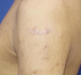 のタトゥー除去(刺青・入れ墨を消す治療)の症例写真[アフター]