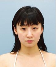 コムロクリニック(旧コムロ美容外科)の目・二重の整形の症例写真[ビフォー]