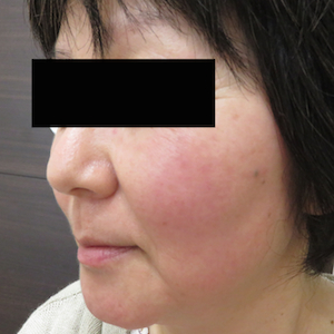 はなふさ皮膚科のシミ治療(シミ取り)・肝斑・毛穴治療の症例写真[アフター]