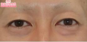 2ヶ月【若返り】眉下切開法の症例写真[ビフォー]