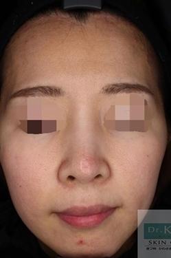 皮フ科 かわさきかおりクリニックのニキビ治療・ニキビ跡の治療の症例写真[ビフォー]