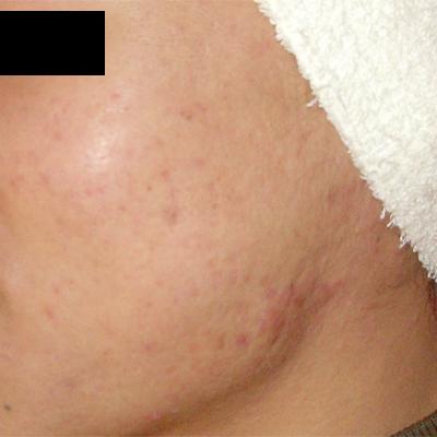 ニキビ治療:エンジェルピール、ロングパルスヤグレーザーの症例写真[アフター]