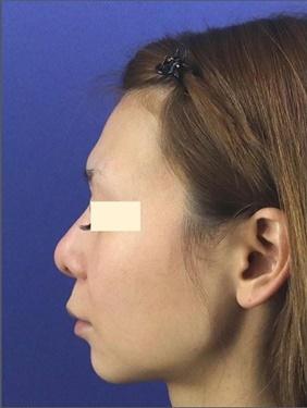 鼻の修正治療と額の形成の症例写真[ビフォー]