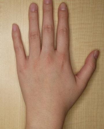 さやか美容クリニック・町田のタトゥー除去(刺青・入れ墨を消す治療)の症例写真[アフター]