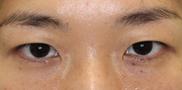 大塚美容形成外科の症例写真[ビフォー]