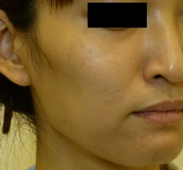 さやか美容クリニック・町田の顔のしわ・たるみの整形の症例写真[ビフォー]