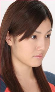 城本クリニックの鼻の整形の症例写真[アフター]
