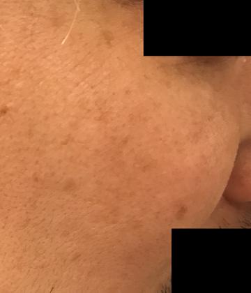 ローズマリークリニックのシミ治療(シミ取り)・肝斑・毛穴治療の症例写真[アフター]
