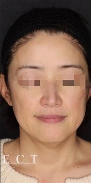 SELECT CLINIC(セレクトクリニック)のシミ治療(シミ取り)・肝斑・毛穴治療の症例写真[アフター]