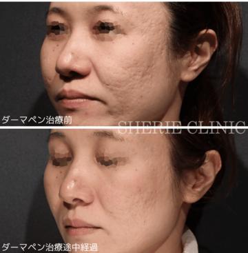 SHERIE CLINIC (シェリークリニック)のニキビ・ニキビ跡の治療の症例写真