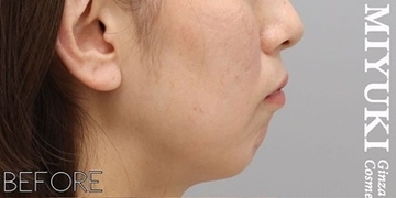 銀座みゆき通り美容外科 大阪院の顔のしわ・たるみの整形の症例写真[ビフォー]