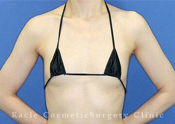 新宿ラクル美容外科クリニックの豊胸・胸の整形の症例写真[ビフォー]