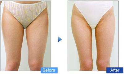 コムロ式脂肪吸引(脚)の症例写真