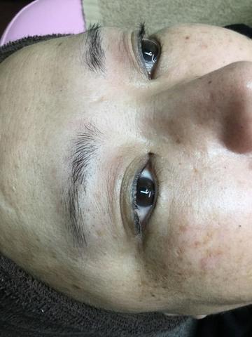 ウェルネスビューティクリニック名古屋院のアートメイクの症例写真[ビフォー]