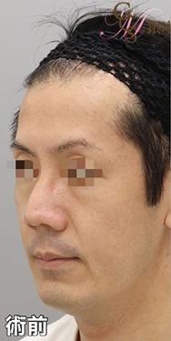 銀座みゆき通り美容外科 大阪院の輪郭・顎の整形の症例写真[ビフォー]