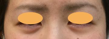 シンシアガーデンクリニック 太田院(女性専用クリニック)の症例写真[アフター]